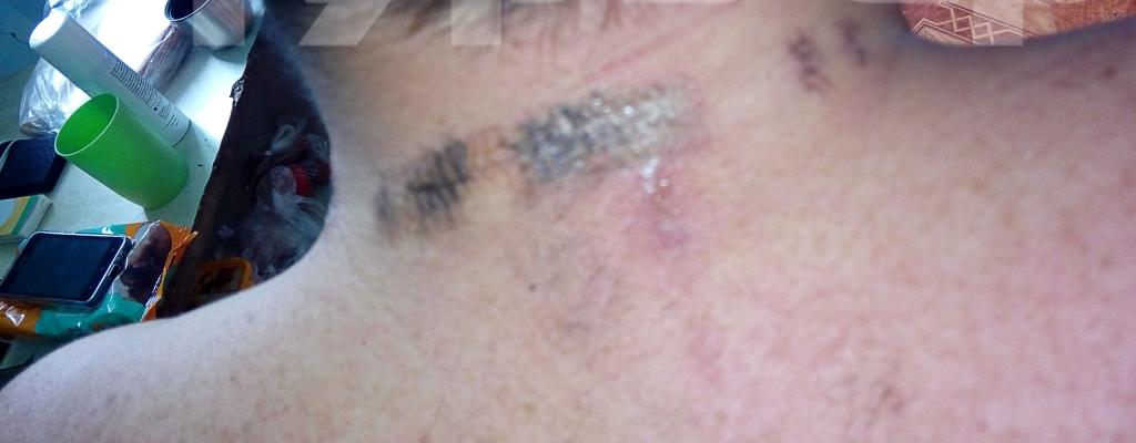 Предположительно электроудар спровоцировала серебряная цепочка на шее